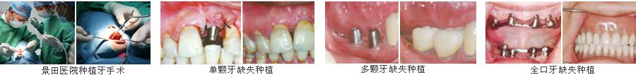 摆脱了传统种植牙切开翻起牙肉,缝合,拆线等步骤,将创伤降低到最小